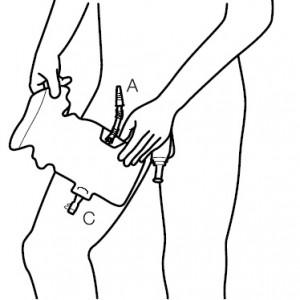 Apply Conveen Active Urinary Leg Bag 7